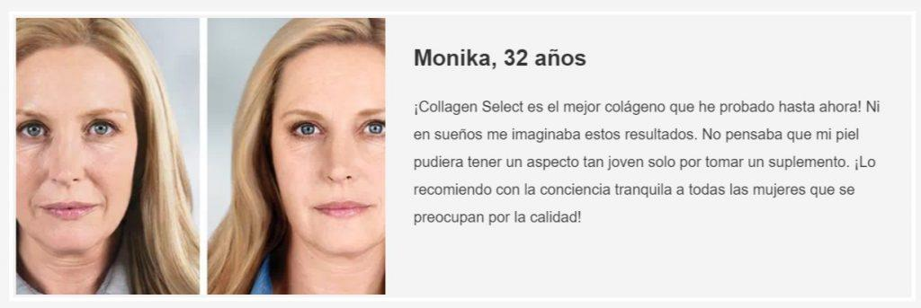 Collagen Select opiniones